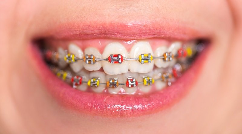 Multi colored yellow and red braces