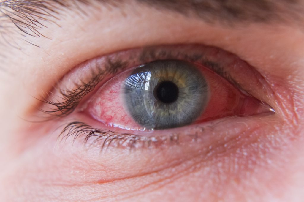 Close up of a persons eye showing a pink eye