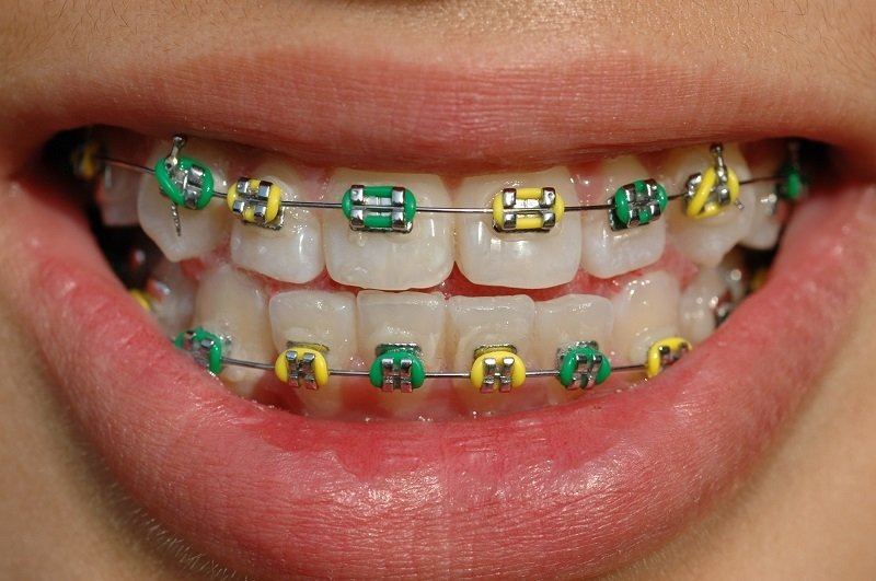 Green and yellow braces